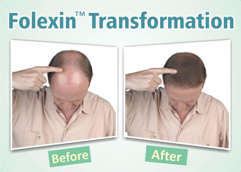 Folexin before and after
